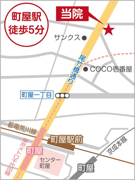 map_ira